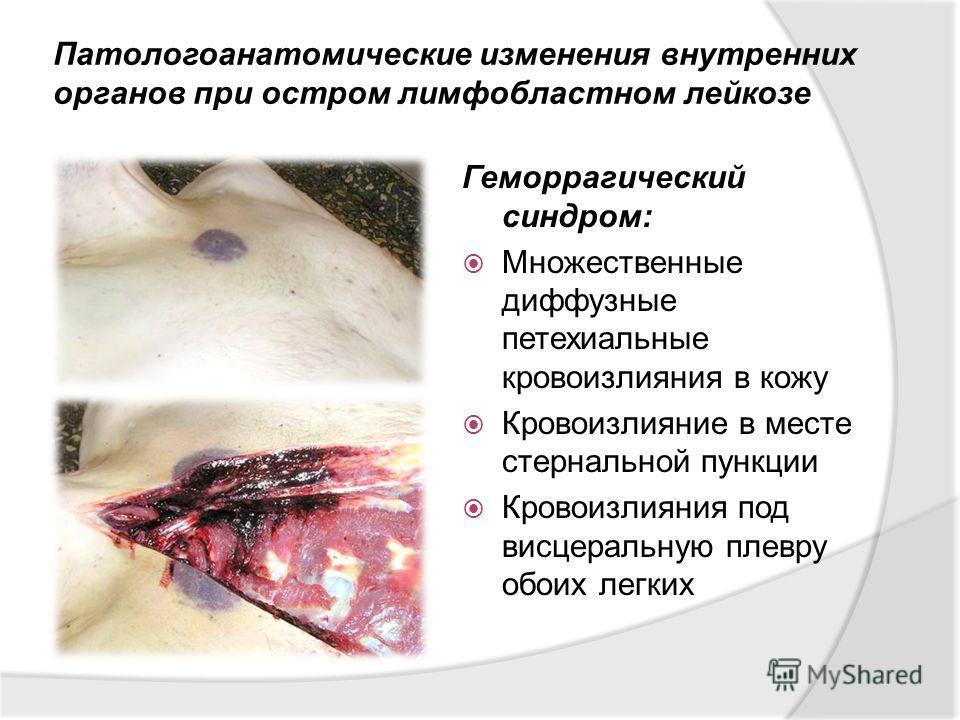 Патологоанатомические изменения внутренних органов при остром лимфобластном лейкозе Геморрагический синдром: Множественные диффузные петехиальные кровоизлияния в кожу Кровоизлияние в месте стернальной пункции Кровоизлияния под висцеральную плевру обо