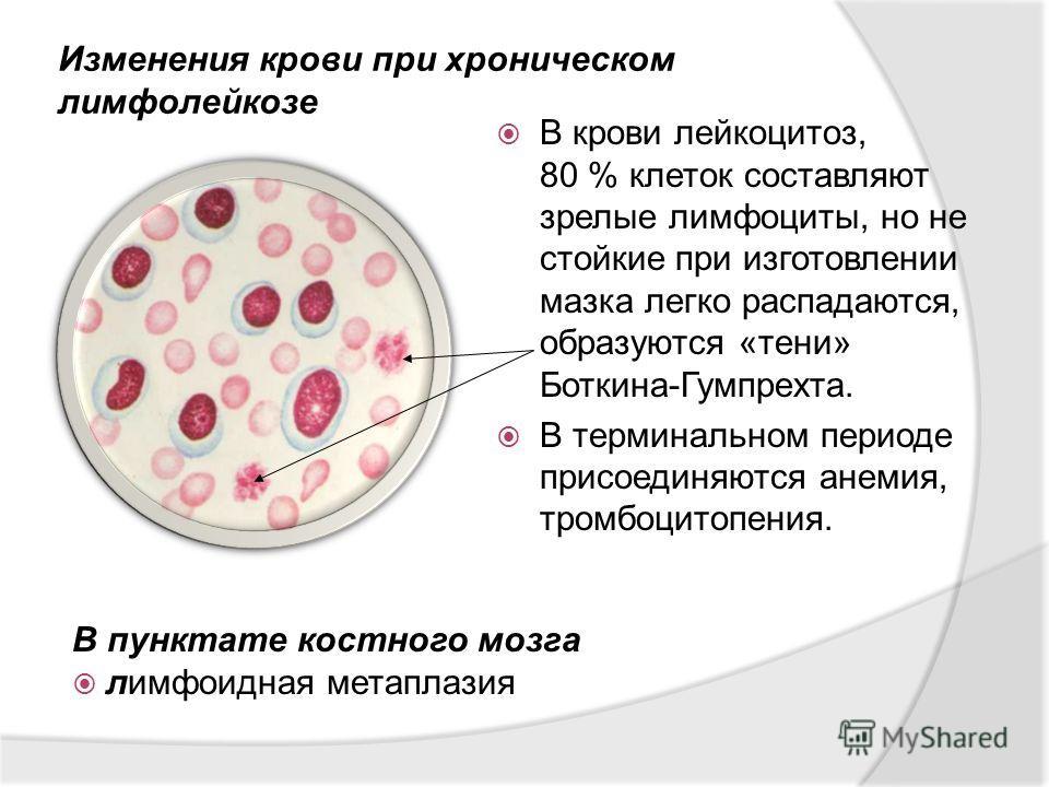 В крови лейкоцитоз, 80 % клеток составляют зрелые лимфоциты, но не стойкие при изготовлении мазка легко распадаются, образуются «тени» Боткина-Гумпрехта. В терминальном периоде присоединяются анемия, тромбоцитопения. Изменения крови при хроническом л