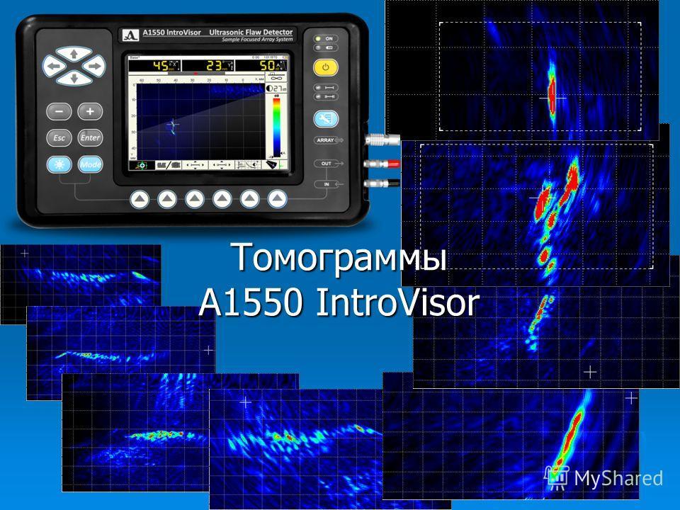 Томограммы А1550 IntroVisor