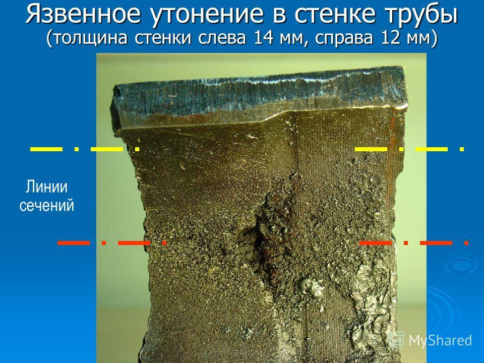 Язвенное утонение в стенке трубы (толщина стенки слева 14 мм, справа 12 мм) Линии сечений