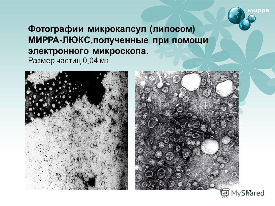 17 Фотографии микрокапсул (липосом) МИРРА-ЛЮКС,полученные при помощи электронного микроскопа. Размер частиц 0,04 мк.