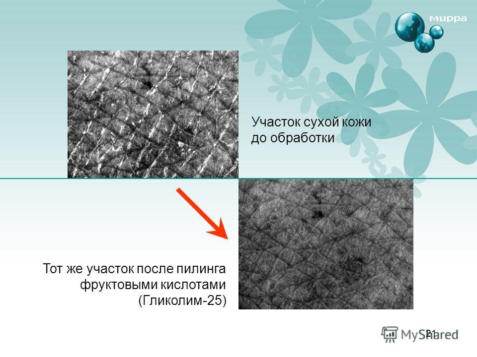 21 Участок сухой кожи до обработки Тот же участок после пилинга фруктовыми кислотами (Гликолим-25)