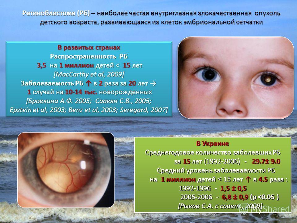 Ретинобластома (РБ) – наиболее частая внутриглазная злокачественная опухоль детского возраста, развивающаяся из клеток эмбриональной сетчатки В развитых странах Распространенность РБ 3,5 на 1 миллион детей < 15 лет 3,5 на 1 миллион детей < 15 лет [Ma