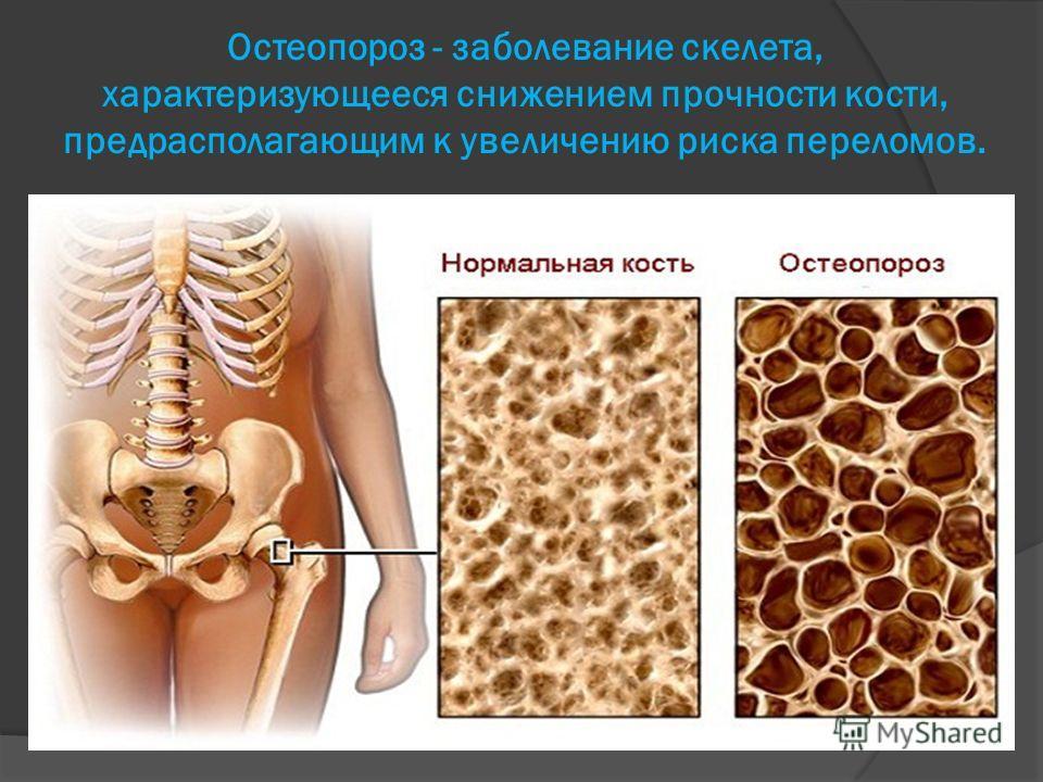 Остеопороз - заболевание скелета, характеризующееся снижением прочности кости, предрасполагающим к увеличению риска переломов.