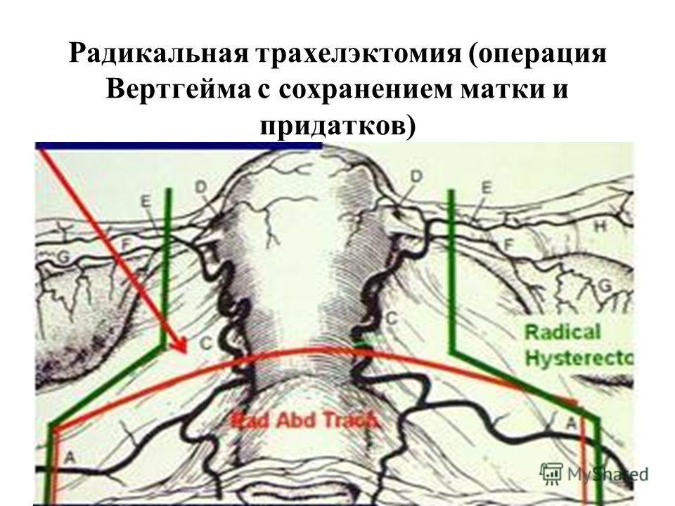 Радикальная трахелэктомия (операция Вертгейма с сохранением матки и придатков)