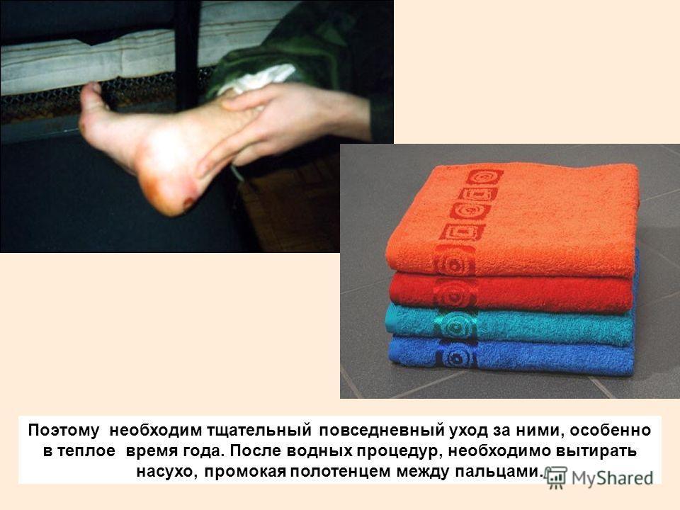 Поэтому необходим тщательный повседневный уход за ними, особенно в теплое время года. После водных процедур, необходимо вытирать насухо, промокая полотенцем между пальцами.