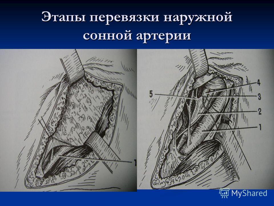 Этапы перевязки наружной сонной артерии