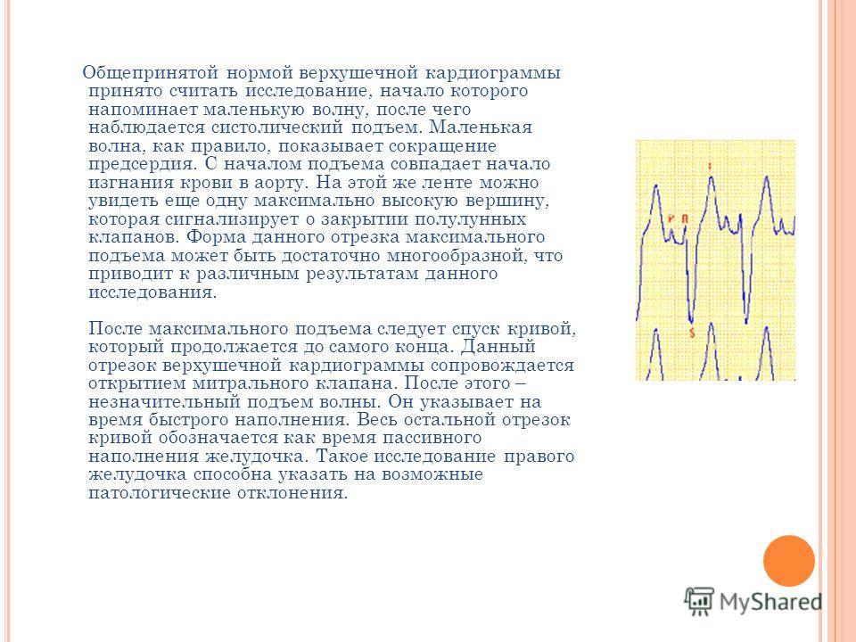 Общепринятой нормой верхушечной кардиограммы принято считать исследование, начало которого напоминает маленькую волну, после чего наблюдается систолический подъем. Маленькая волна, как правило, показывает сокращение предсердия. С началом подъема совп