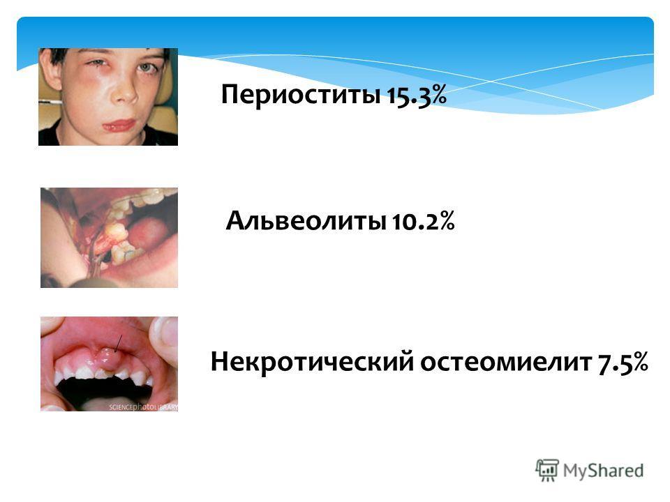 Периоститы 15.3% Альвеолиты 10.2% Некротический остеомиелит 7.5%