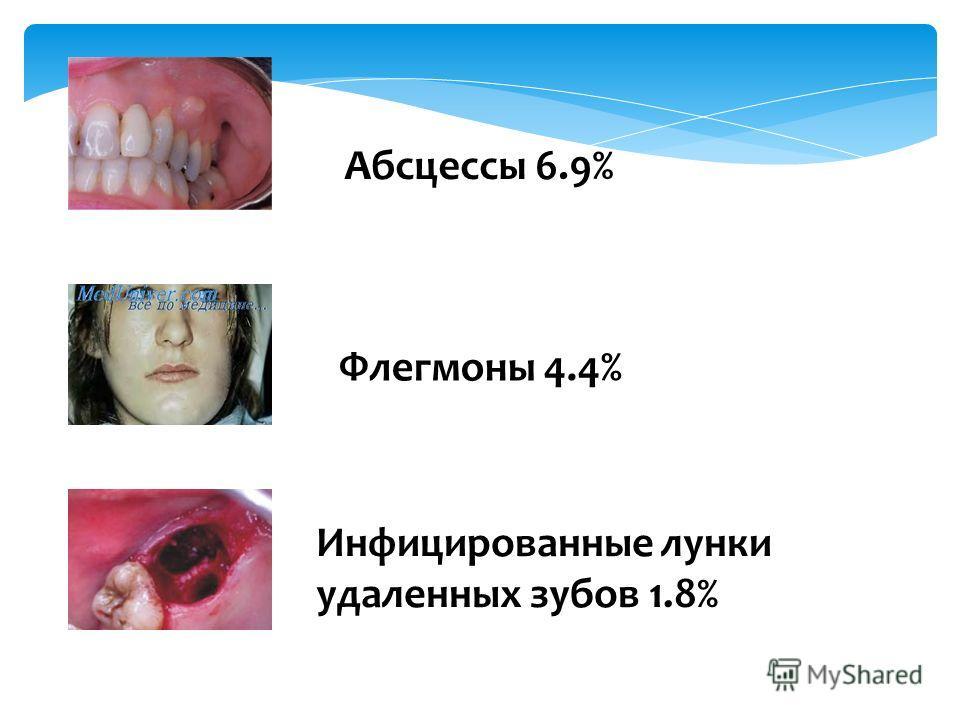 Абсцессы 6.9% Флегмоны 4.4% Инфицированные лунки удаленных зубов 1.8%