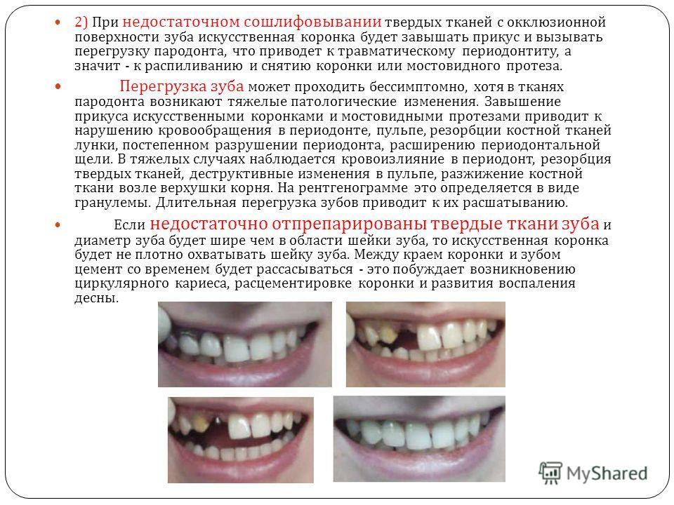 2) При недостаточном сошлифовывании твердых тканей с окклюзионной поверхности зуба искусственная коронка будет завышать прикус и вызывать перегрузку пародонта, что приводет к травматическому периодонтиту, а значит - к распиливанию и снятию коронки ил