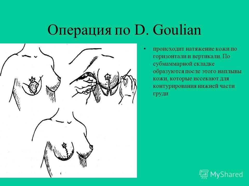 Операция по D. Goulian После разметки нового местоположения ареолы очерчивается равносторонний треугольник с основанием, проходящим через центр ареолы Второй треугольник на том же основании строится с вершиной на субмаммарной складке. Кожу в пределах