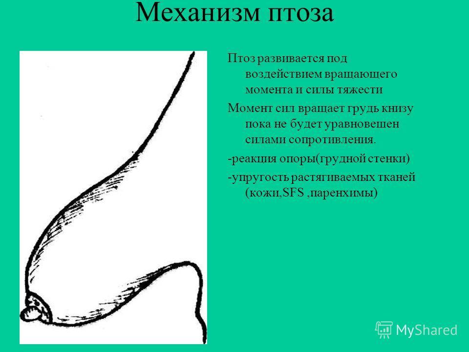 Причины птоза недоразвитие железистой ткани вследствие нарушенного кровообращения от ношения сдавливающих бюстгальтеров положение молочных желез находится в тесной связи с осанкой женщин. Грудная клетка является опорой для желез во всех случаях, когд