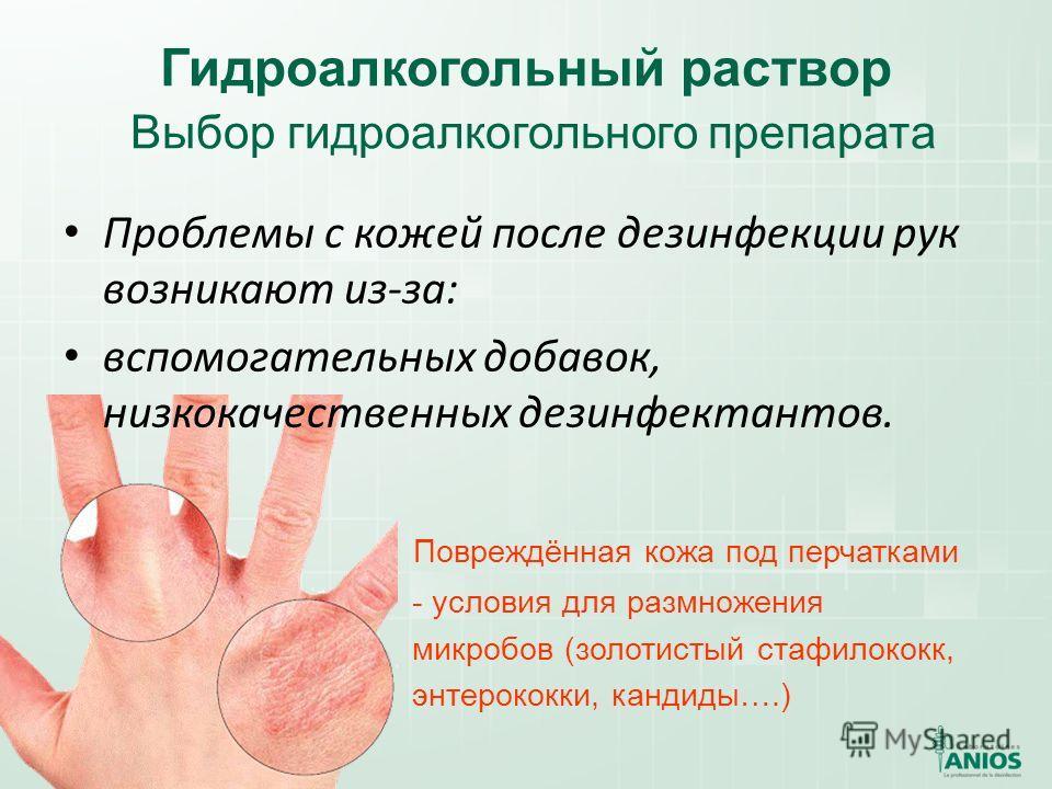 Гидроалкогольный раствор Выбор гидроалкогольного препарата Проблемы с кожей после дезинфекции рук возникают из-за: вспомогательных добавок, низкокачественных дезинфектантов. Повреждённая кожа под перчатками - условия для размножения микробов (золотис
