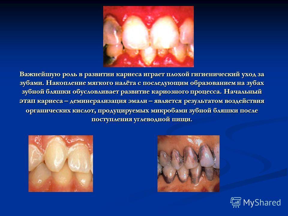 Важнейшую роль в развитии кариеса играет плохой гигиенический уход за зубами. Накопление мягкого налёта с последующим образованием на зубах зубной бляшки обусловливает развитие кариозного процесса. Начальный этап кариеса – деминерализация эмали – явл