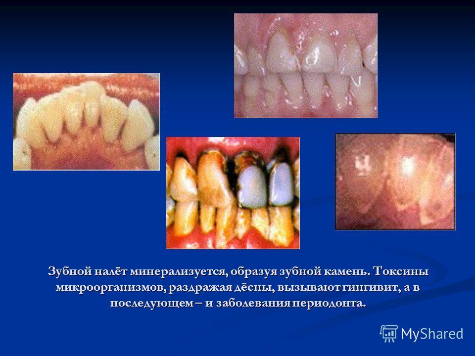 Зубной налёт минерализуется, образуя зубной камень. Токсины микроорганизмов, раздражая дёсны, вызывают гингивит, а в последующем – и заболевания периодонта.