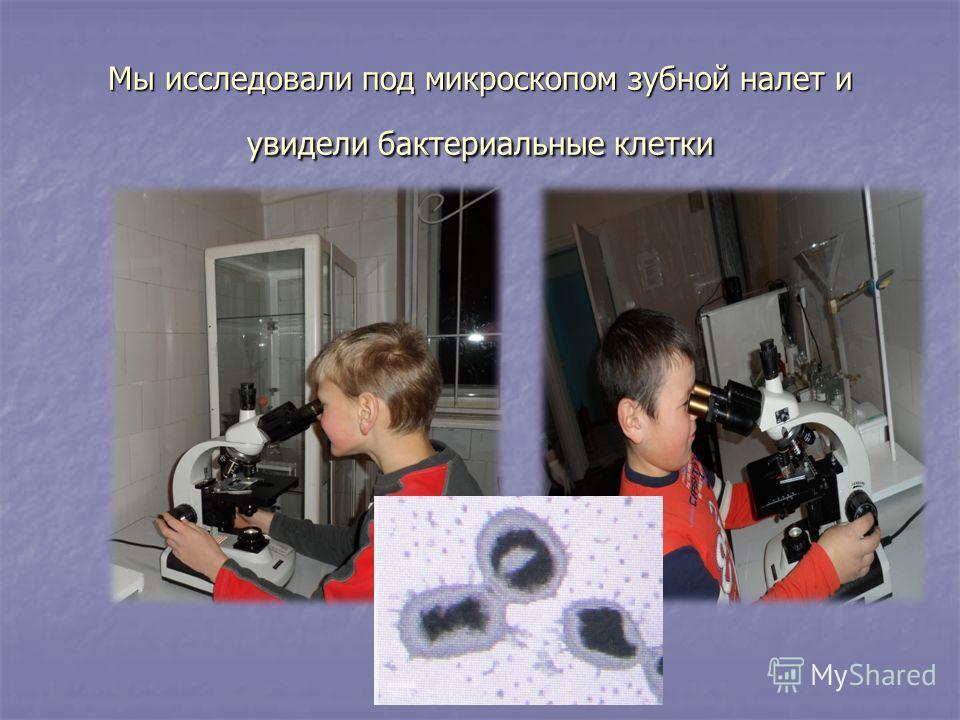 Мы исследовали под микроскопом зубной налет и увидели бактериальные клетки