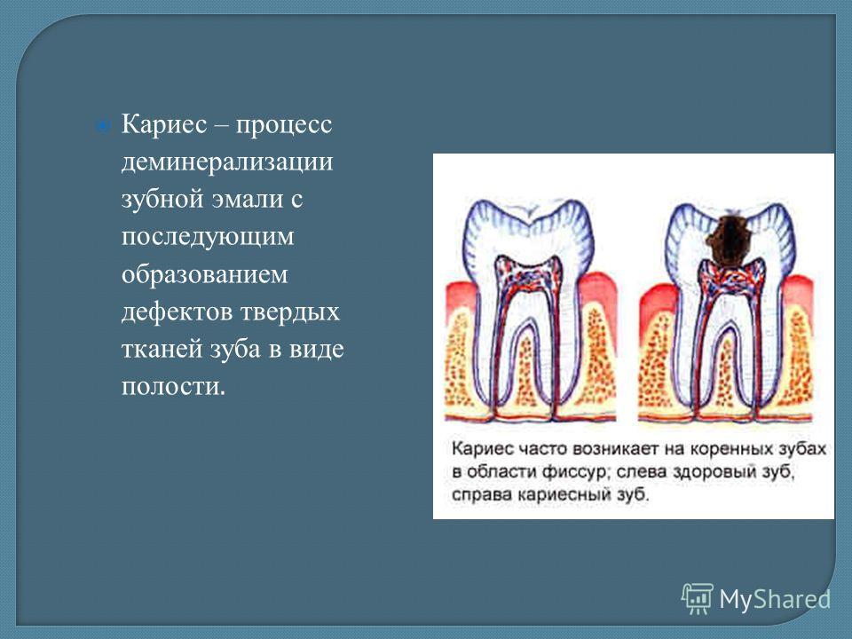 ??? Определите факторы риска развития кариеса зубов ? ???