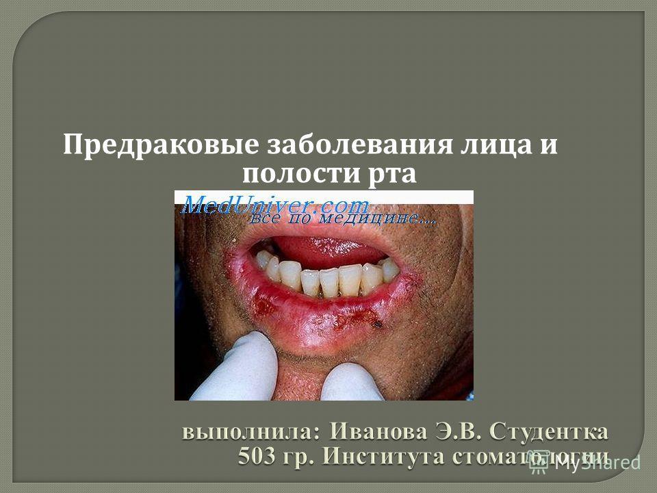 Предраковые заболевания лица и полости рта