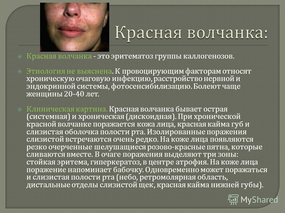 Красная волчанка - это эритематоз группы каллогенозов. Этиология не выяснена. К провоцирующим факторам относят хроническую очаговую инфекцию, расстройство нервной и эндокринной системы, фотосенсибилизацию. Болеют чаще женщины 20-40 лет. Клиническая к