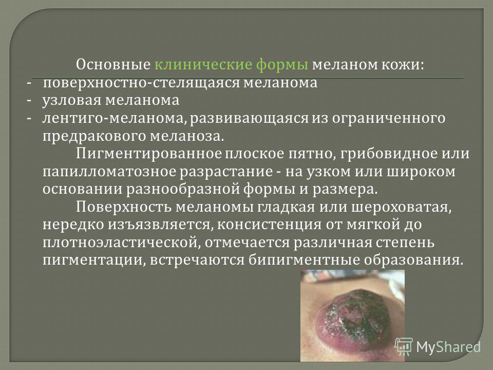Основные клинические формы меланом кожи : - поверхностно - стелящаяся меланома - узловая меланома - лентиго - меланома, развивающаяся из ограниченного предракового меланоза. Пигментированное плоское пятно, грибовидное или папилломатозное разрастание