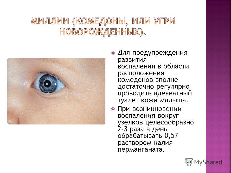 Для предупреждения развития воспаления в области расположения комедонов вполне достаточно регулярно проводить адекватный туалет кожи малыша. При возникновении воспаления вокруг узелков целесообразно 2-3 раза в день обрабатывать 0,5% раствором калия п
