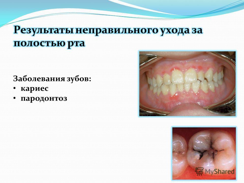 Заболевания зубов: кариес пародонтоз