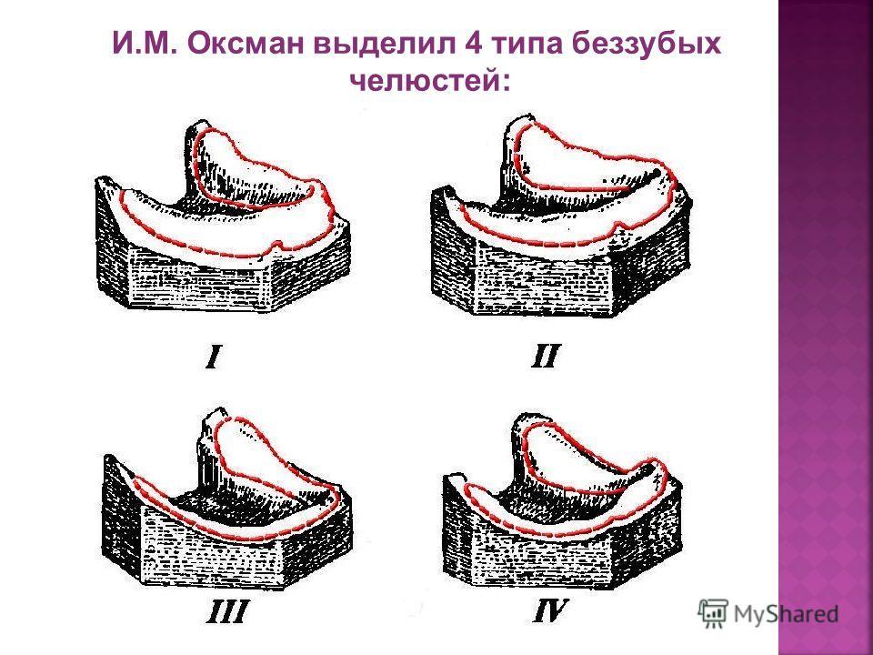 И.М. Оксман выделил 4 типа беззубых челюстей: