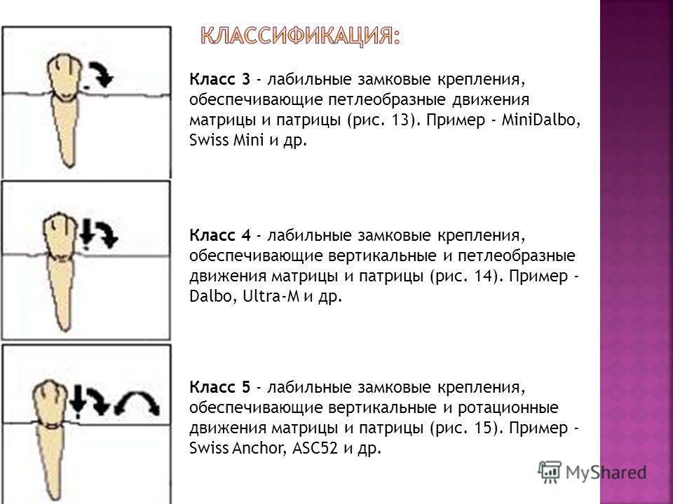 Класс 3 - лабильные замковые крепления, обеспечивающие петлеобразные движения матрицы и патрицы (рис. 13). Пример - MiniDalbo, Swiss Mini и др. Класс 4 - лабильные замковые крепления, обеспечивающие вертикальные и петлеобразные движения матрицы и пат
