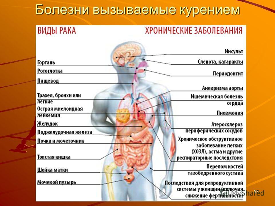 27 Болезни вызываемые курением