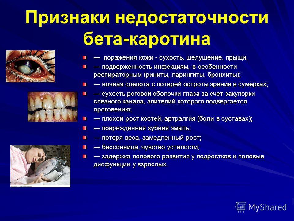 Признаки недостаточности бета-каротина поражения кожи - сухость, шелушение, прыщи, поражения кожи - сухость, шелушение, прыщи, подверженность инфекциям, в особенности респираторным (риниты, ларингиты, бронхиты); подверженность инфекциям, в особенност