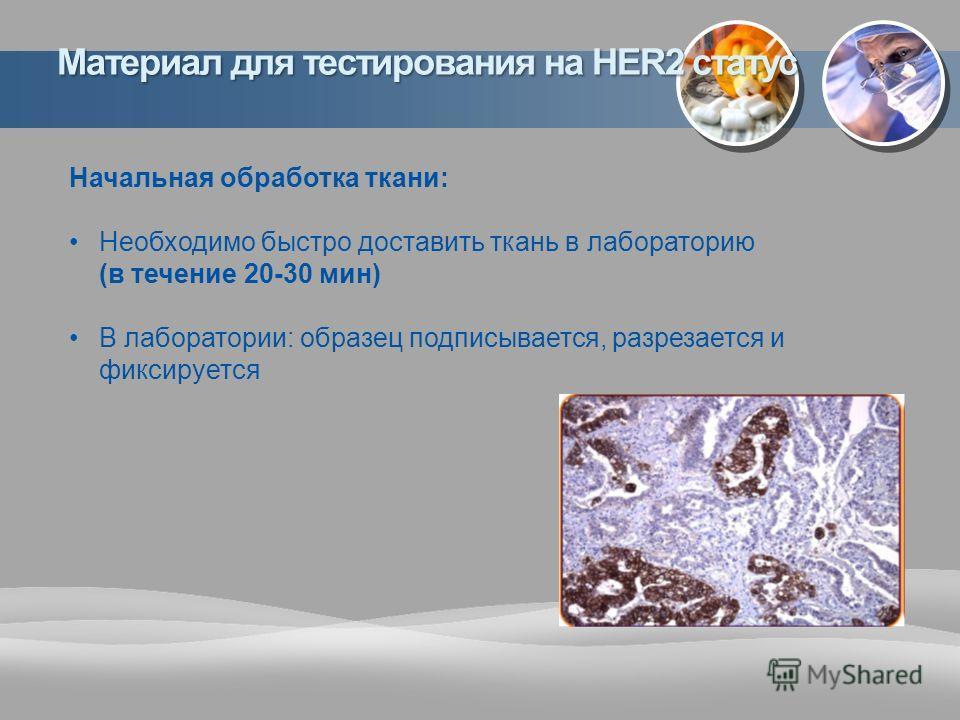 Начальная обработка ткани: Необходимо быстро доставить ткань в лабораторию (в течение 20-30 мин) В лаборатории: образец подписывается, разрезается и фиксируется Материал для тестирования на HER2 статус