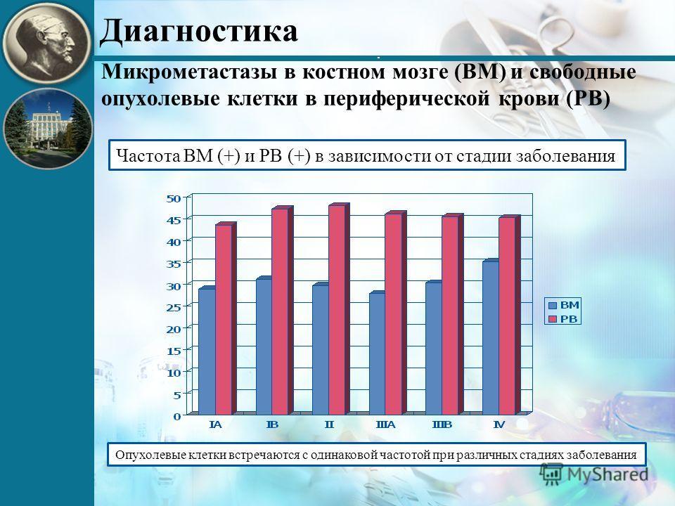 Опухолевые клетки встречаются с одинаковой частотой при различных стадиях заболевания Частота BM (+) и PB (+) в зависимости от стадии заболевания Диагностика. Микрометастазы в костном мозге (BM) и свободные опухолевые клетки в периферической крови (P