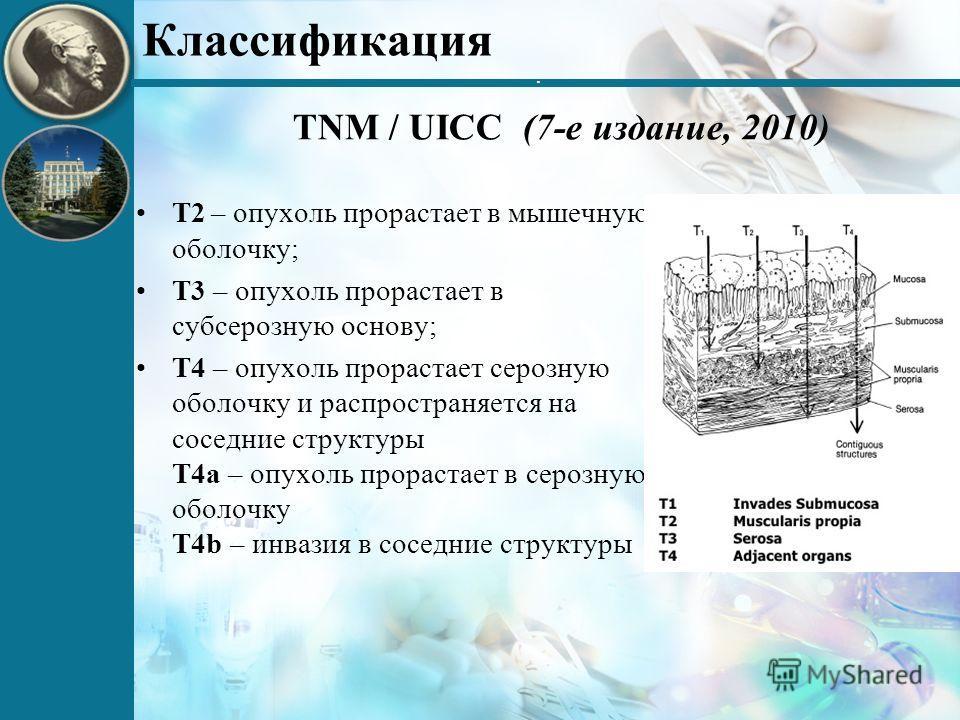 . Классификация TNM / UICC (7-е издание, 2010) Т2 – опухоль прорастает в мышечную оболочку; Т3 – опухоль прорастает в субсерозную основу; Т4 – опухоль прорастает серозную оболочку и распространяется на соседние структуры Т4а – опухоль прорастает в се