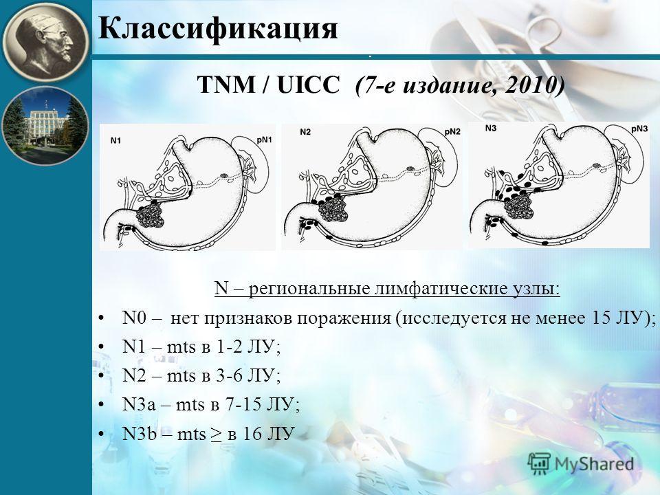 . Классификация TNM / UICC (7-е издание, 2010) N – региональные лимфатические узлы: N0 – нет признаков поражения (исследуется не менее 15 ЛУ); N1 – mts в 1-2 ЛУ; N2 – mts в 3-6 ЛУ; N3a – mts в 7-15 ЛУ; N3b – mts в 16 ЛУ
