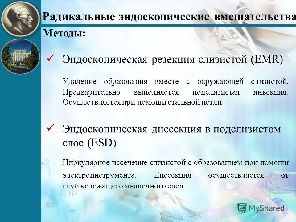 Эндоскопическая резекция слизистой (EMR) Удаление образования вместе с окружающей слизистой. Предварительно выполняется подслизистая инъекция. Осуществляется при помощи стальной петли Эндоскопическая диссекция в подслизистом слое (ESD) Циркулярное ис