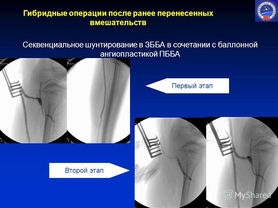 Секвенциальное шунтирование в ЗББА в сочетании с баллонной ангиопластикой ПББА Первый этап Второй этап Гибридные операции после ранее перенесенных вмешательств