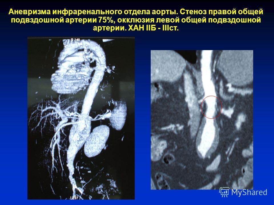 Аневризма инфраренального отдела аорты. Стеноз правой общей подвздошной артерии 75%, окклюзия левой общей подвздошной артерии. ХАН IIБ - IIIст.
