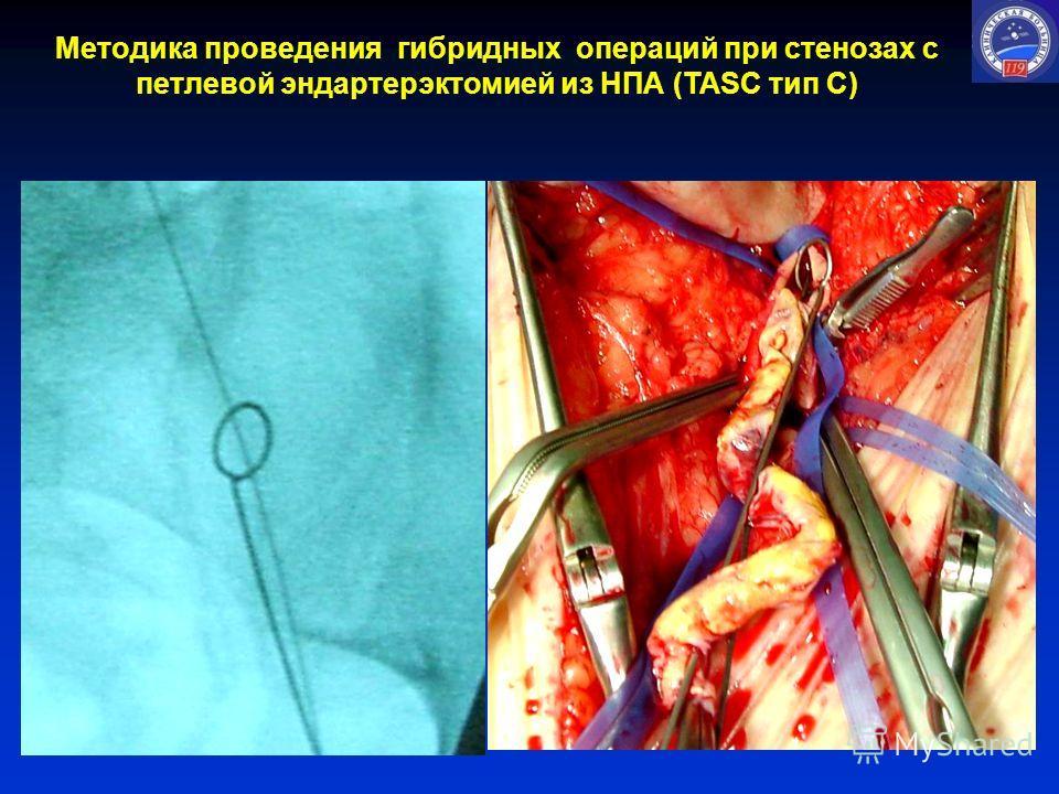 Методика проведения гибридных операций при стенозах с петлевой эндартерэктомией из НПА (TASC тип С)