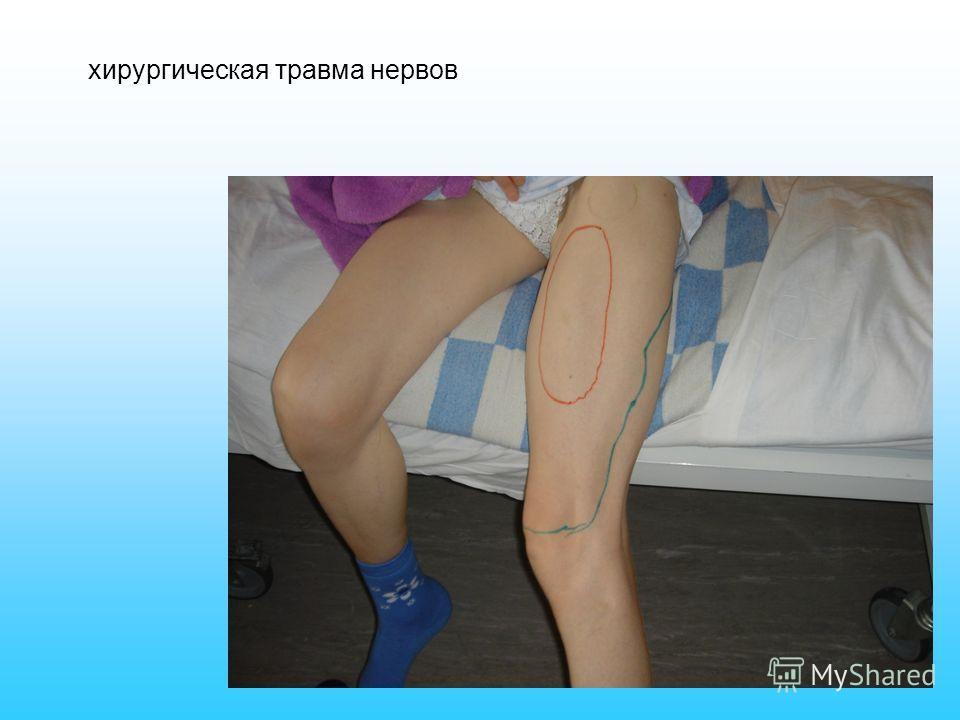 хирургическая травма нервов