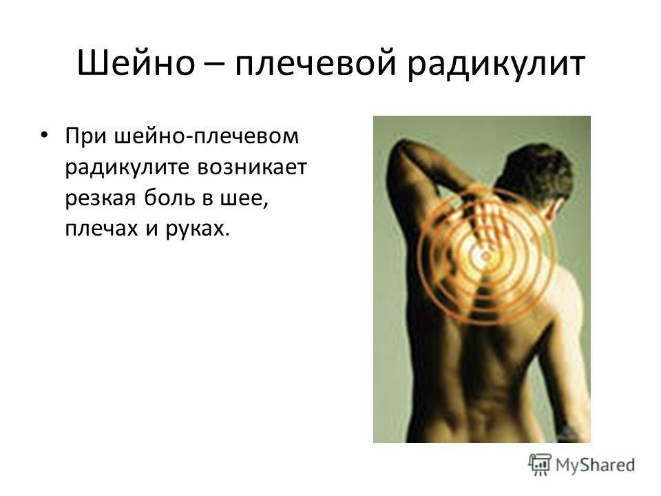 Шейно – плечевой радикулит При шейно-плечевом радикулите возникает резкая боль в шее, плечах и руках.