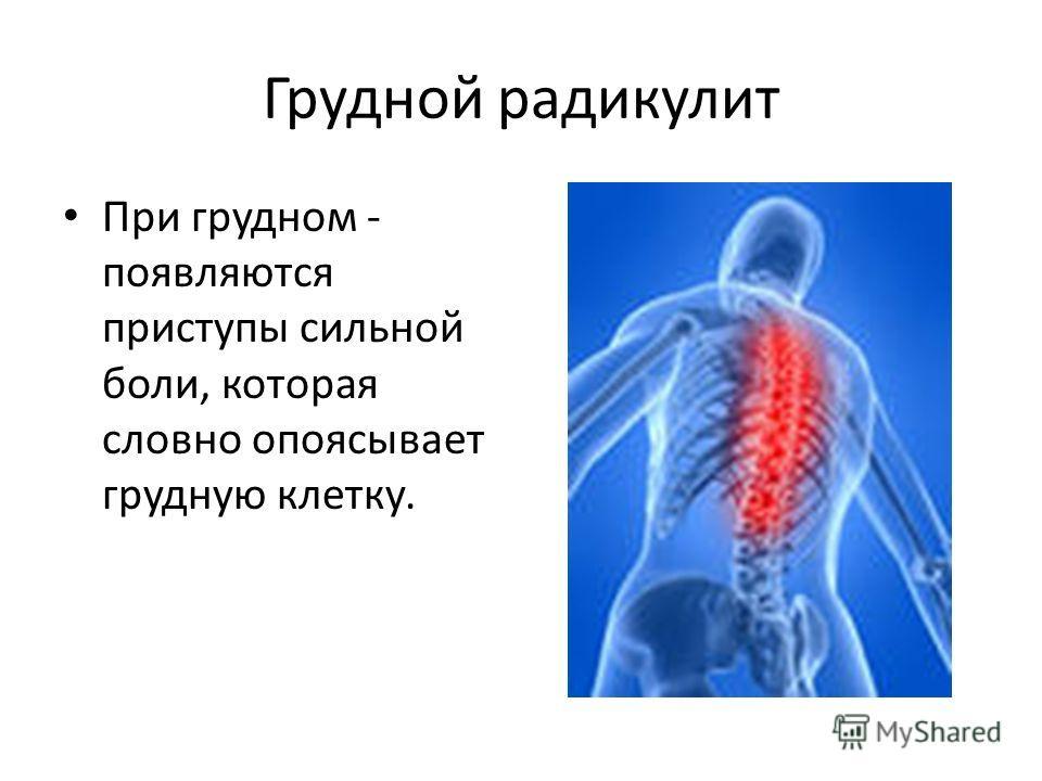 Грудной радикулит При грудном - появляются приступы сильной боли, которая словно опоясывает грудную клетку.