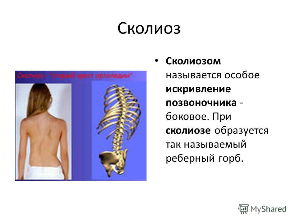 Сколиоз Сколиозом называется особое искривление позвоночника - боковое. При сколиозе образуется так называемый реберный горб.