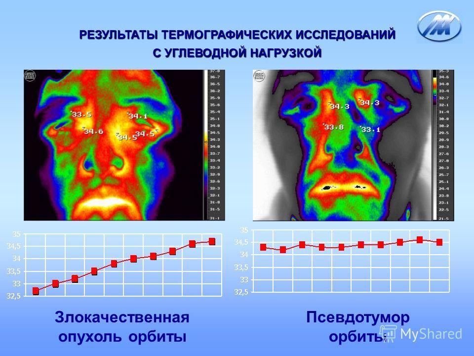 Злокачественная опухоль орбиты Псевдотумор орбиты РЕЗУЛЬТАТЫ ТЕРМОГРАФИЧЕСКИХ ИССЛЕДОВАНИЙ С УГЛЕВОДНОЙ НАГРУЗКОЙ