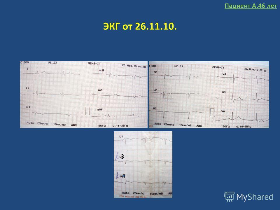 ЭКГ от 26.11.10. 3 4 Пациент А.46 лет