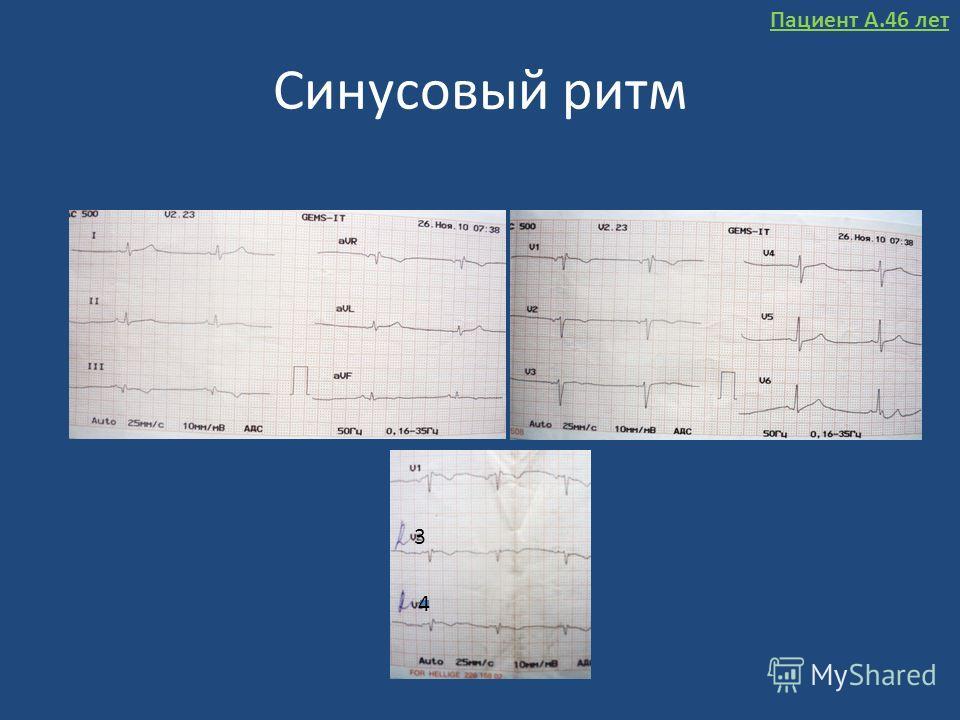 Синусовый ритм 3 4 Пациент А.46 лет