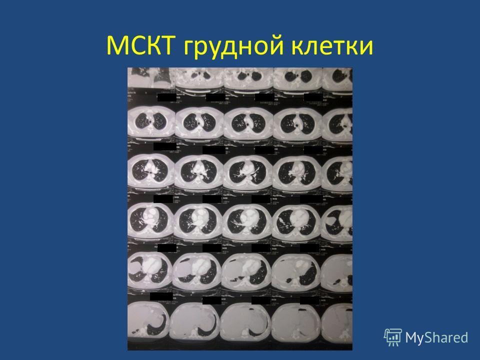 МСКТ грудной клетки