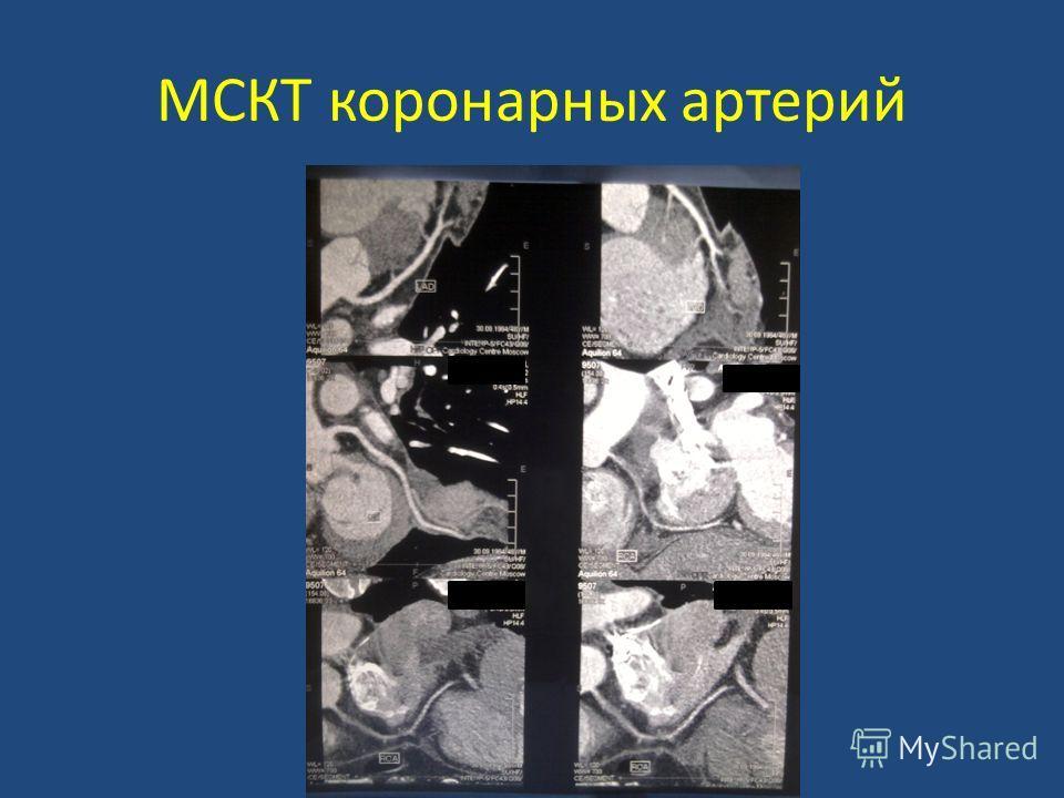 МСКТ коронарных артерий