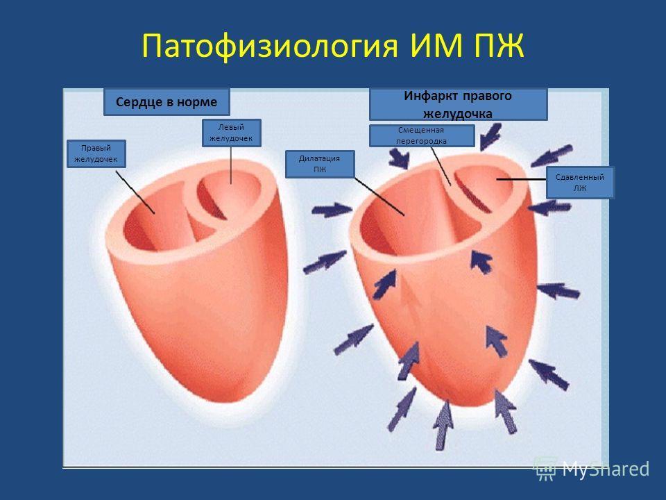 Патофизиология ИМ ПЖ Правый желудочек Левый желудочек Сердце в норме Инфаркт правого желудочка Дилатация ПЖ Сдавленный ЛЖ Смещенная перегородка