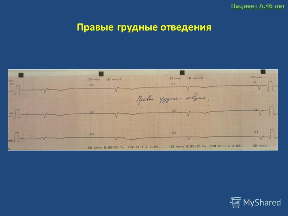 Правые грудные отведения Пациент А.46 лет
